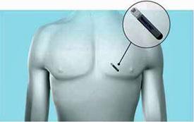 Implantable Cardiac Monitor 2